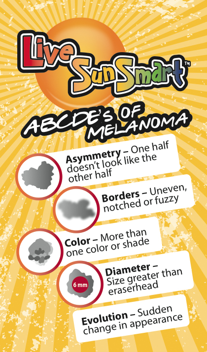 Live Sun Smart - ABCDE's of Melanoma. A = Asymmetry - one half doesn't look like the other half. B = Borders - uneven, notched or fuzzy. C = Color - more than one color or shade. D = Diameter - Size greater than an eraserhead. E = Evolution - Sudden change in appearance.